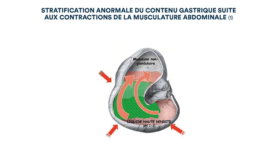 Stratification anormale du contenu gastrique suite aux contractions de la musculature abdominale (1)